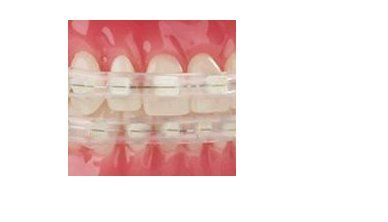 Braces Cover for Ceramic Brackets