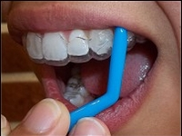 Retainer and Invisalign Removal Tools