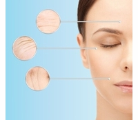 Light Therapy Devices for Wrinkles & Acne
