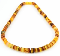 Amber Necklace for Healing - a gift from nature