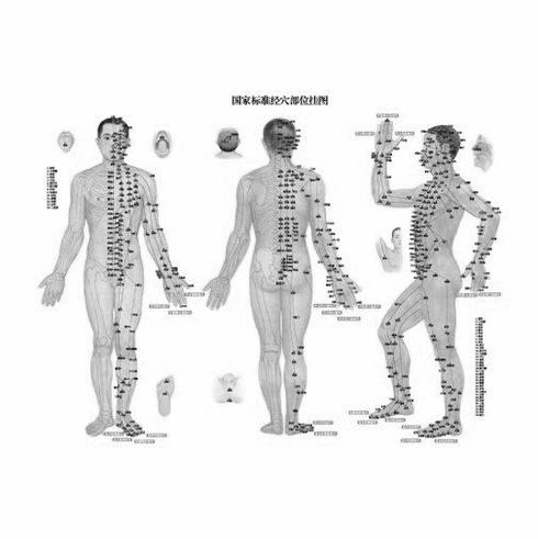 "Acupuncture Black and White Poster 24""x36"""