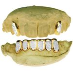 Real 10K Gold 2-Tone Dust 2/6 Custom Grillz