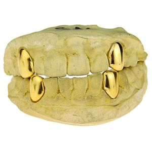 Real 10K Gold 4 Single Caps w/Back Bars Custom Grillz