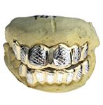 Real 10K Gold 2-Tone Diamond-Cut Custom Grillz