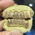 10K Gold Polynesian Laser Engraved Custom Grillz