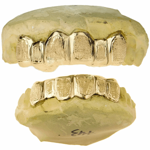 Real 10K Solid Gold Diamond Dust Custom Grillz