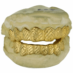 14K Gold Diamond-Cut Dust Grillz