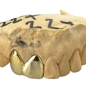 Real 14K Gold Double Side Canine Custom Grillz