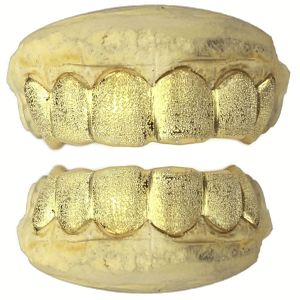 Real 14k Gold Full Diamond-Dust Custom Grillz