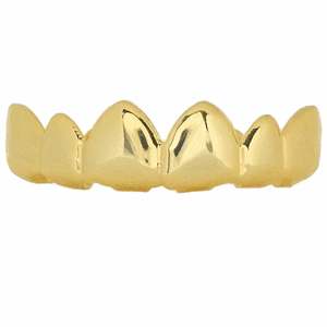14K Gold Plated Pointy Top Grillz