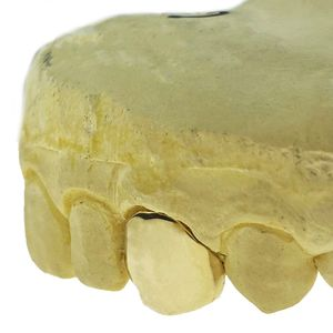 Real 14K Solid Gold Single Cap (Choose Any Tooth)