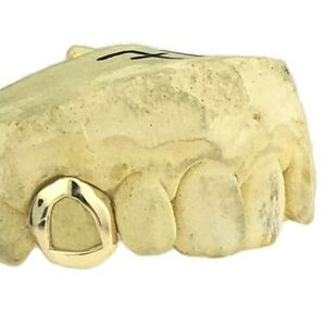 Real 14K Gold Open Face K9 Custom Tooth Cap