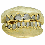 Real 14K Gold Two-Tone Diamond-Dust Custom Grillz