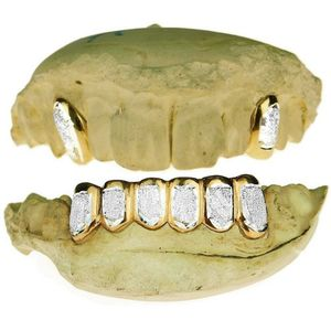 Real 14k Gold 2-Tone Dust 2/6 Custom Grillz