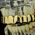 Gold 8 Tooth Upper Grillz
