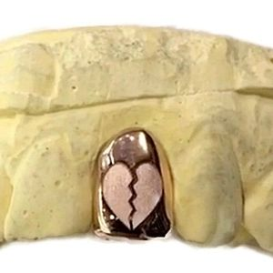 10K Rose Gold Broken Heart  (Any Tooth)