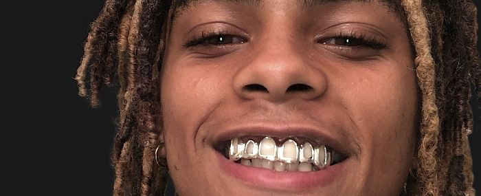 Open Face Custom Grillz