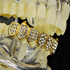 Gold 8 Bottom Iced-Out Fang Grillz