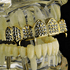 Gold 8 Top Iced-Out Fang Grillz