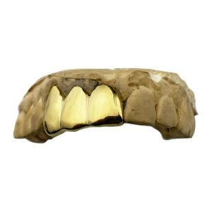 Gold Plated 925 Silver Three Tooth Custom Grillz
