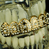 Gold Crown Top Teeth Grillz