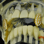 Gold CZ Two Fangs Set