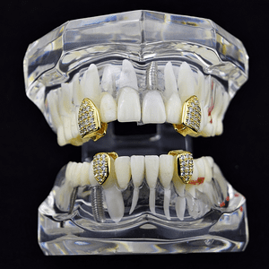 Gold CZ 4 Single Tooth Caps Set