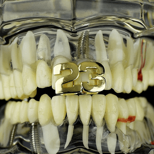 Gold #23 Upper Grillz