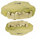 Gold Plated 925 Dust Custom Grillz