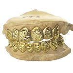 Gold Plated Dust Diamond-Cut Custom Grillz