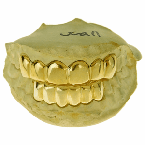 Gold Plated Over Real 925 Silver Custom Grillz