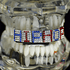 Mixed Name Custom Teeth Grillz