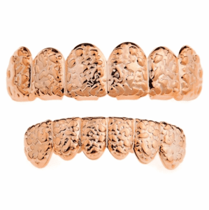 Rose Gold Nugget Teeth Grillz Set