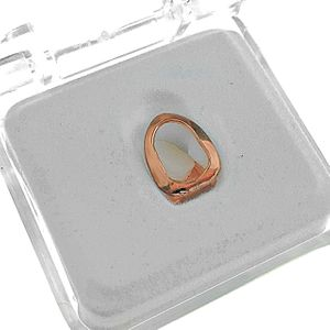 Rose Gold Open Top Single Tooth Cap