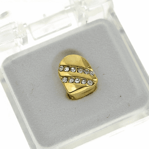 Gold Backslash Top Single Tooth Cap