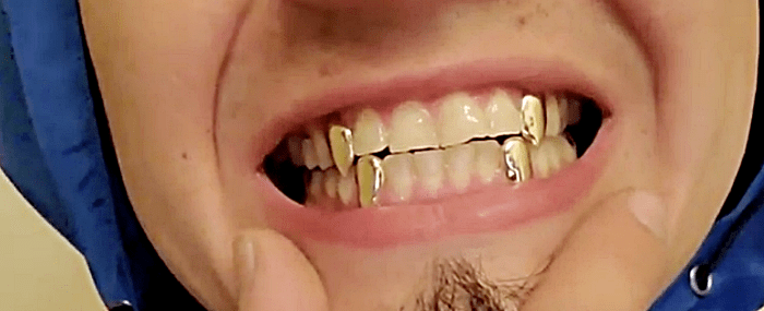 Gold Custom Fangs