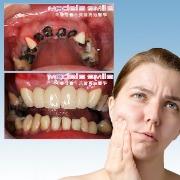 無齒併發疾病多 植牙許一個健康未來