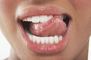 Strengthen your teeth naturally with these powerfully protective bites