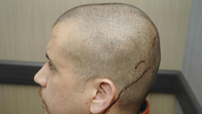 This Feb. 27, 2012 photo released by the State Attorney's Office shows George Zimmerman, the neighborhoodwatch volunteer who shot Trayvon Martin, with blood on the back of his head. The photo and reports were among evidence released by prosecutors that also includes calls to police, video and numerous other documents. The package was received by defense lawyers earlier this week and released to the media on Thursday, May 17, 2012. (AP Photo/State Attorney's Office)
