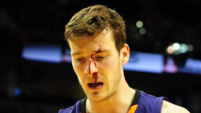Phoenix Suns shooting guard Goran Dragic (1) walks off the court bleeding during the fourth quarter of an NBA basketball game against the Portland Trail Blazers on Wednesday, Nov. 13, 2013, in Portland, Ore. The Blazers won the game 90-89
