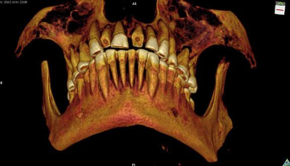 """A 3D reconstruction of the 2,100-year-old mummy's teeth. They were in horrible shape with """"numerous"""" abscesses and cavities, problems that may have resulted in a sinus infection, possibly fatal."""