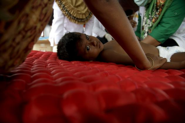 An ethnic Rohingya kid receives a medical treatment at a temporary shelter in Langsa, Aceh province, Indonesia, Friday, May 22, 2015. Thousands of refugees and migrants have washed ashore in Malaysia,