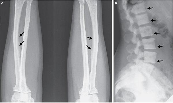A 47-year-old U.S. woman developed a bone disease rarely seen in the U.S. after consuming an excessive amount of tea. An x-ray showed calcifications on ligaments (left) and areas of dense bone on the spinal vertebrae (right).