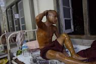 A Buddhist monk injured in a crackdown on a protest at a Chinese-backed copper mine in Monywa, northern Myanmar, is shown December 3, 2012 resting at a hospital. Myanmar police used phosphorus against a rally at a copper mine last year, a parliamentary report led by Aung San Suu Kyi said Tuesday, in the harshest crackdown yet on protest under the reformist regime