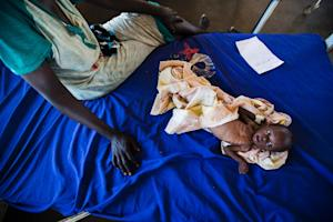 A two-month-old girl with severe malnutrition lies …