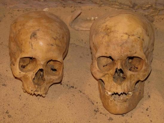 Two skulls excavated from the Qubbet el-Hawa necropolis in Egypt.
