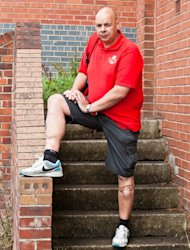 Paul, 44, has been permanently scarred by the savage attack in 2007 (Royal Mail/AB)