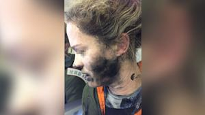Woman suffers burns after headphones catch fire on …