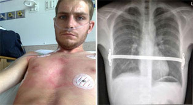 Procedure: Dale Hay had the 'ribcage brace' fitted three years ago to make sure his ribs didn't crush his heart and lungs (Caters)