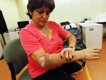 Argentine prosthetic arm 1st in region to read muscle impulses